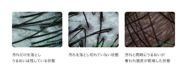 【育毛のコツ2】シャンプー&トリートメントの選び方 図