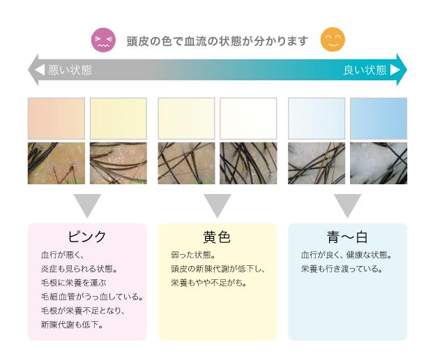 図:頭皮の色で血流の状態が分かります