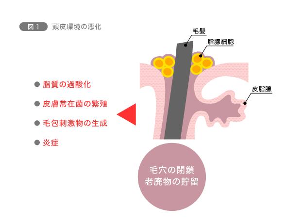 図1 頭皮環境の悪化