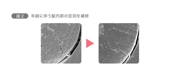 図2 年齢に伴う髪内部の空洞を補修